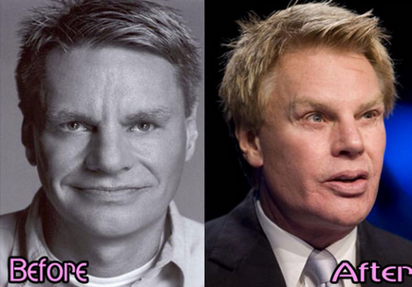 Mike-Jeffries-Nose-Job-Before-and-After_jpg__500×352_