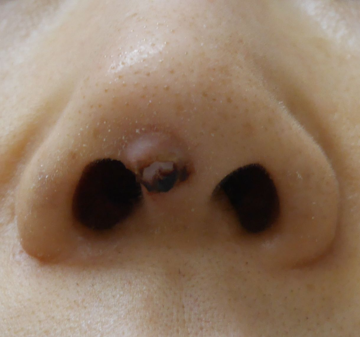 非対称 鼻 左右