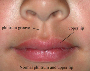 lip___philtrum
