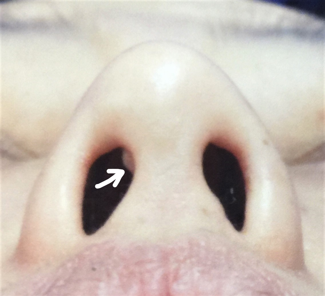 失敗 鼻 プロテーゼ