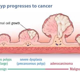 They_found_colon_polyps__Now_what__-_Harvard_Health