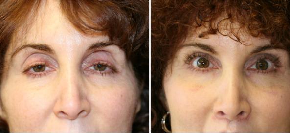 海外の眼瞼下垂の手術例