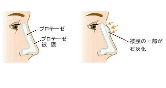 鼻プロテーゼを入れると被膜が石灰化する