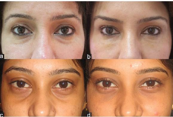 インドの下眼瞼の脱脂術(経結膜脱脂法)の症例