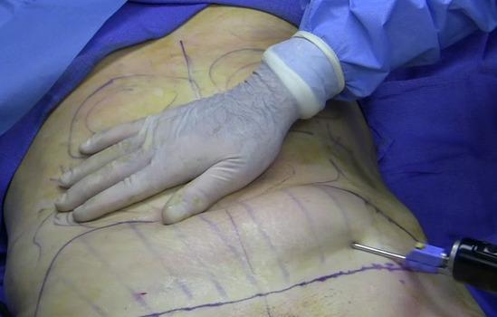 liposuction_2