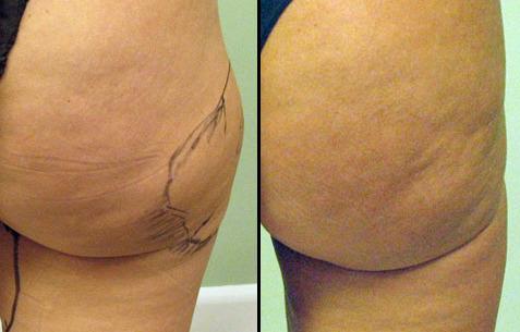 liposuction_3
