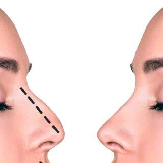 わし鼻をボトックスでキレイに修正できるクリニックは非常に限られています