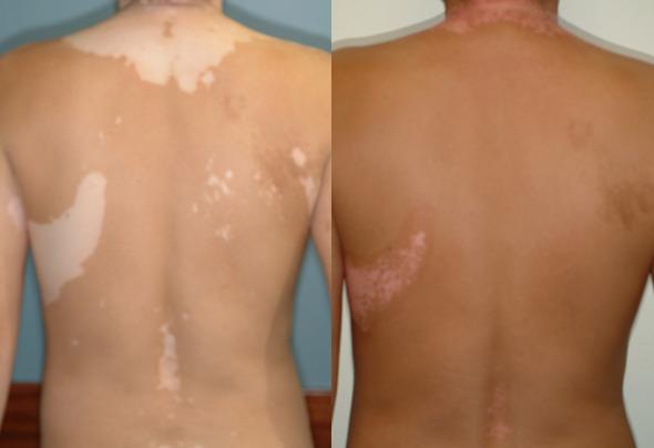 vitiligo_1