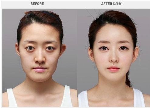 韓国で美容整形したら韓国人顔になった