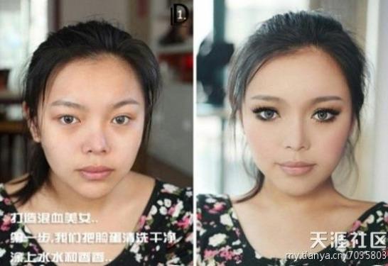 中国の美容整形の看板広告