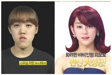 韓国の美容整形番組のビフォーアフター症例画像