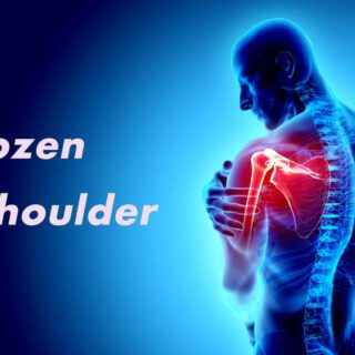 凍結肩は50代でなくても発症します。50肩という呼び方は変えたほうがよいですね。