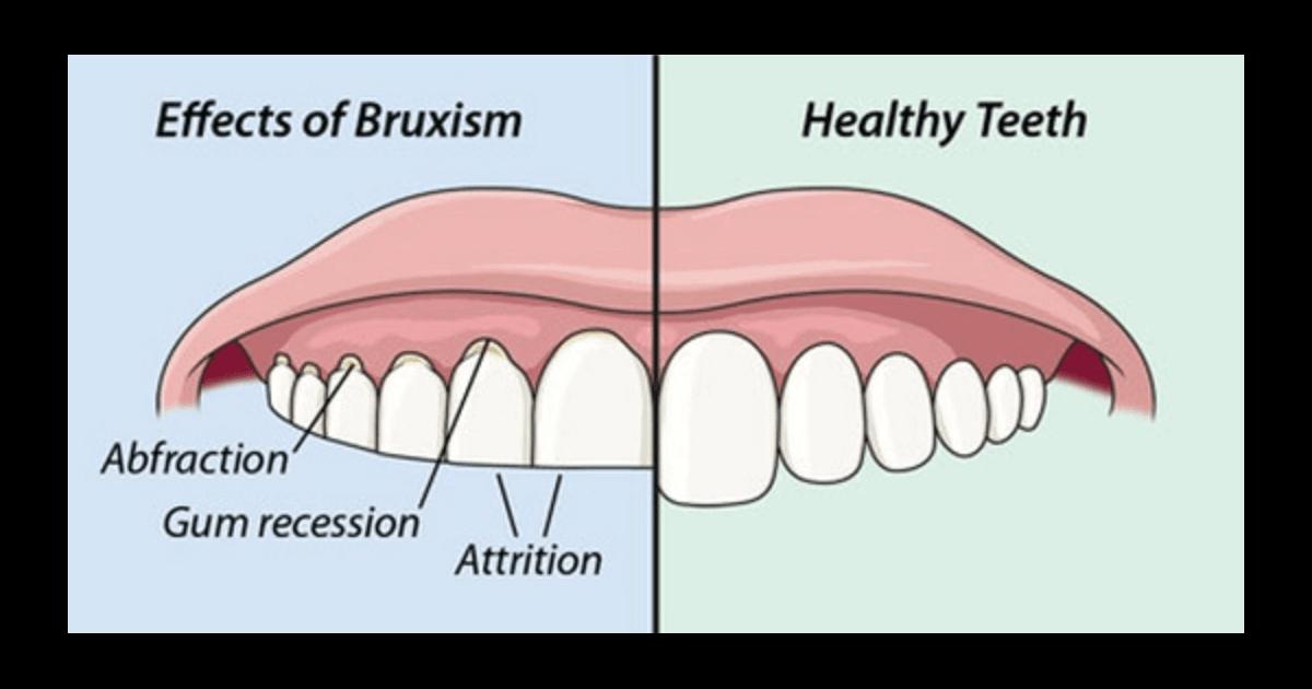 歯軋りで歯が削れて減ってしまう