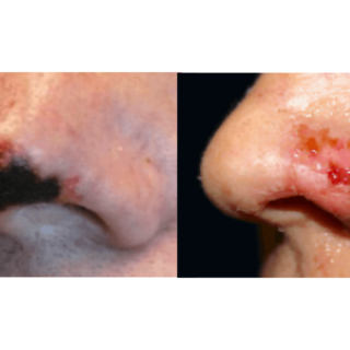 Dermal-Filler-Complications
