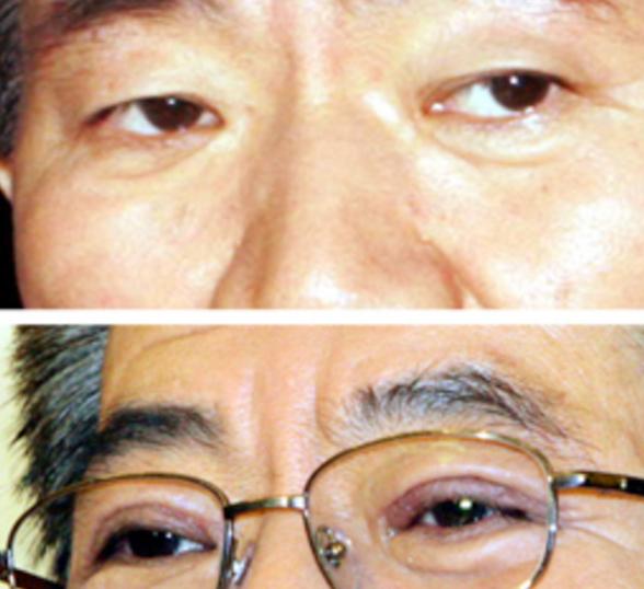 韓国大統領眼瞼下垂手術ビフォーアフター