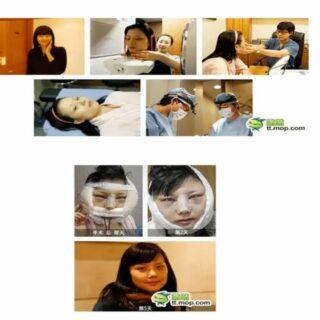 韓国美容整形ビフォーアフター美しくなるまでの過程