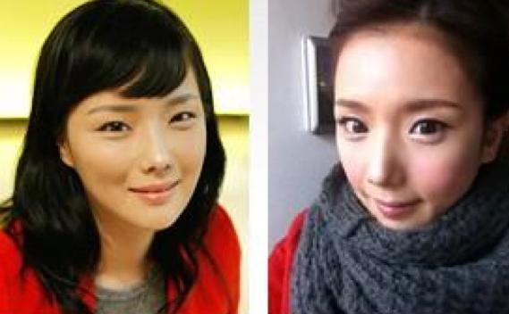 韓国美容整形手術一ヶ月後の写真