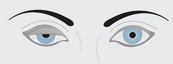眼瞼下垂イラスト