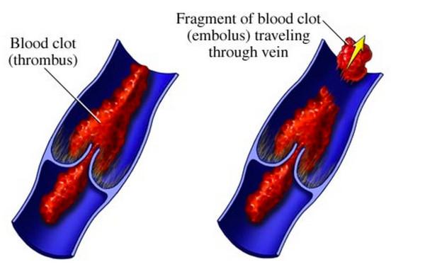 生理痛治療薬「血栓症」の危険性