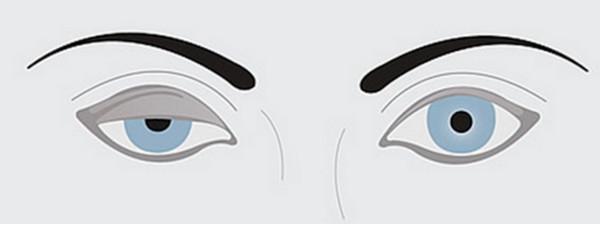 黒目を塞ぐ眼瞼下垂の状態