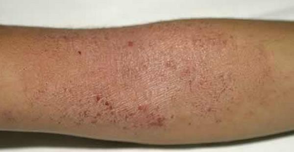 アトピー性皮膚炎の外傷性皮膚色素沈着