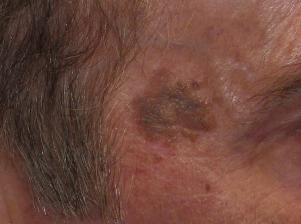 レーザーで取れる脂漏性角化症