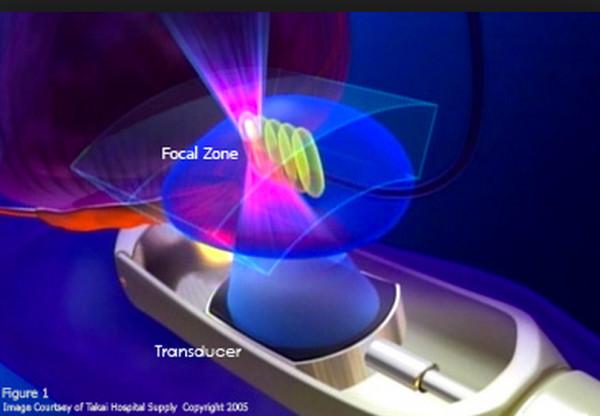 HIFU (高密度焦点式超音波治療法 High Intensity Focused Ultrasoundハイフ