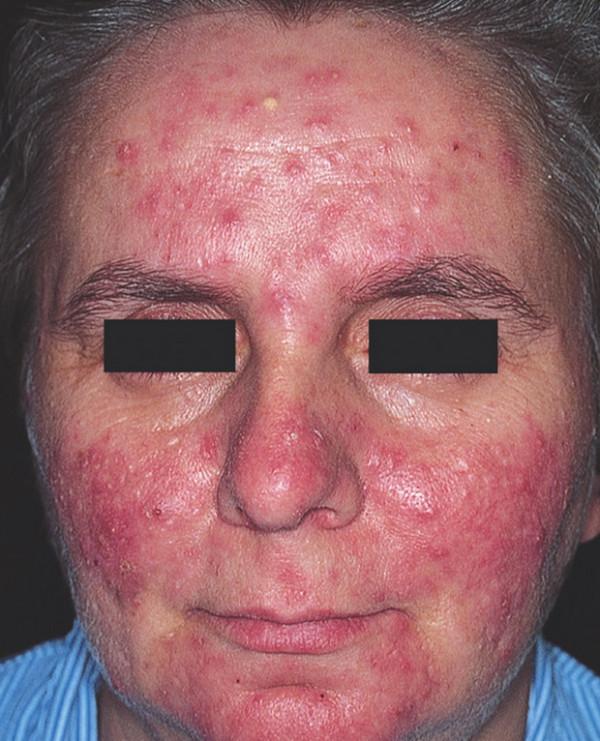 高血圧の薬で顔が赤くなる