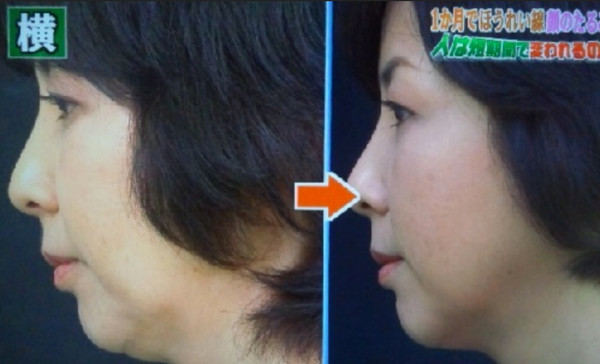インチキ顔のたるみ解消エクササイズビフォーアフター