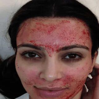顔のたるみを無くすPRP療法別名ヴァンパイアリフト