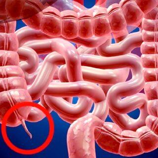 盲腸(虫垂炎)になっても切除はしない方がよいという研究結果があります