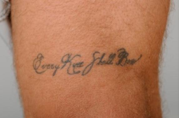 タトゥーがあるのにMRI検査を受けたら皮膚に火傷を負った症例
