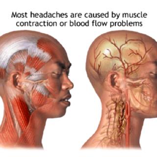 ほとんどの頭痛は筋肉が原因