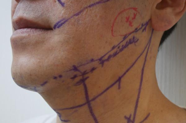 THERMi RF治療前のデザイン