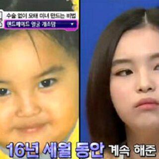 韓国人親子の美容整形話
