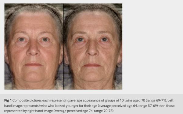 見た目で老けている方が死亡リスクが高い、と伝える医学論文