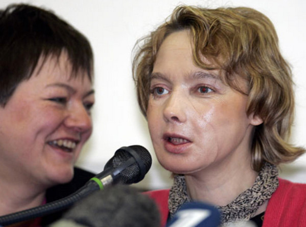 顔面移植をした女性