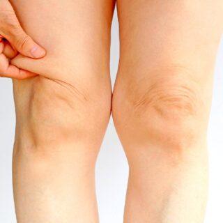 膝の周りの脂肪のむくみを一発で取る方法