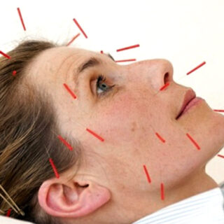 beauty-acupuncture