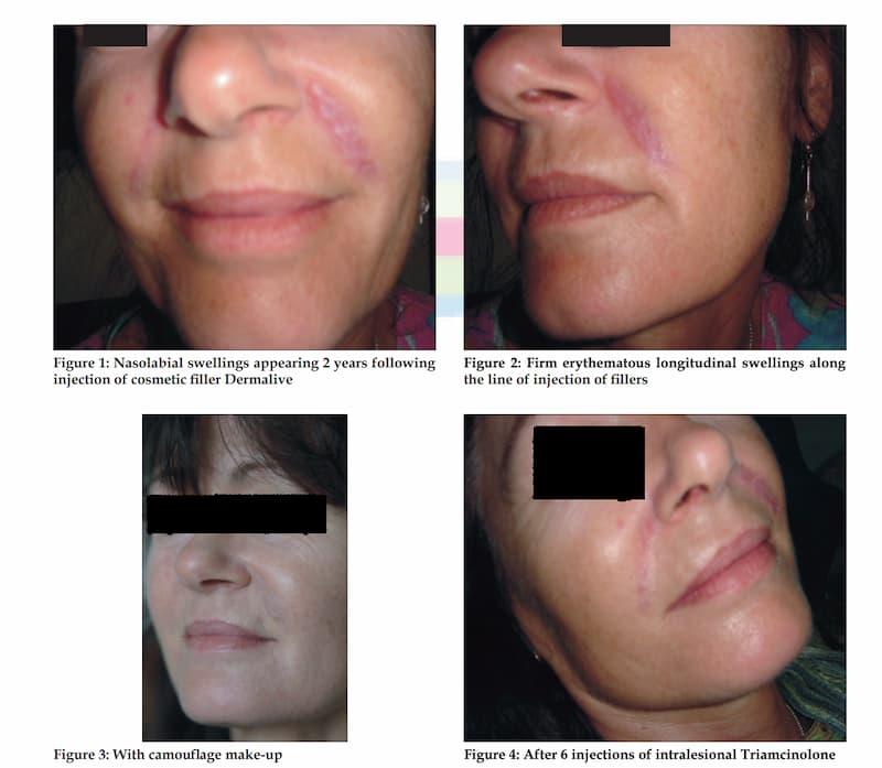 ダーマライブで発生した異物性肉芽腫の症例写真