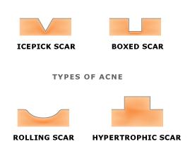 acne_scar