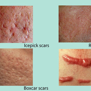 how-to-get-rid-of-scars-and-cuts-left-by-acne