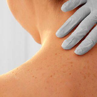 そのシミは日光角化症という皮膚のガンの可能性があります。