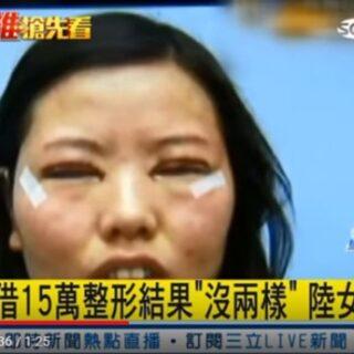 アジア圏で一番人気の美容整形は一重瞼を二重にする手術です