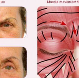 Anti-Wrinkle_Injections_-_Central_Coast-1-e1545053301812