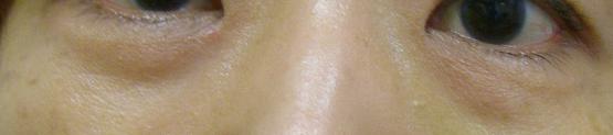下眼瞼の脱脂術(経結膜脱脂法)手術前
