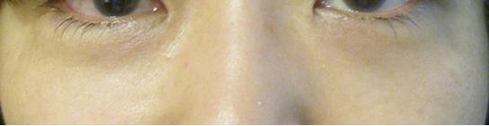 下眼瞼の脱脂術(経結膜脱脂法)脱脂後の写真