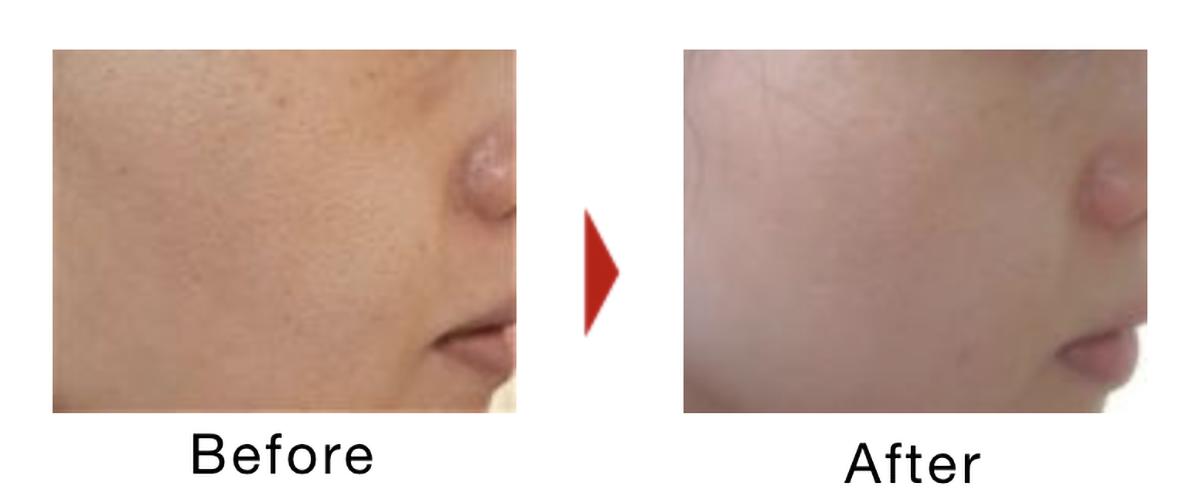 毛穴のビフォーアフター症例写真