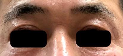 ハイフシャワー直後の瞼の状態