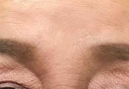 ヒアルロン酸注射後のおでこと眉間